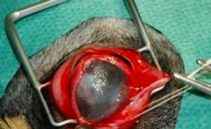 A műtét feltáró metszése